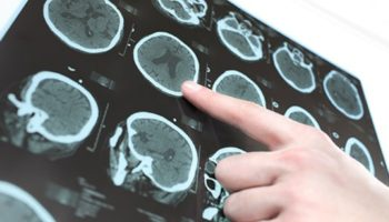 Brain Research from MD Anderson Cancer Center